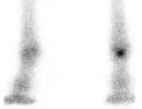 Nuclear Scintigraphy (Bone Scan)